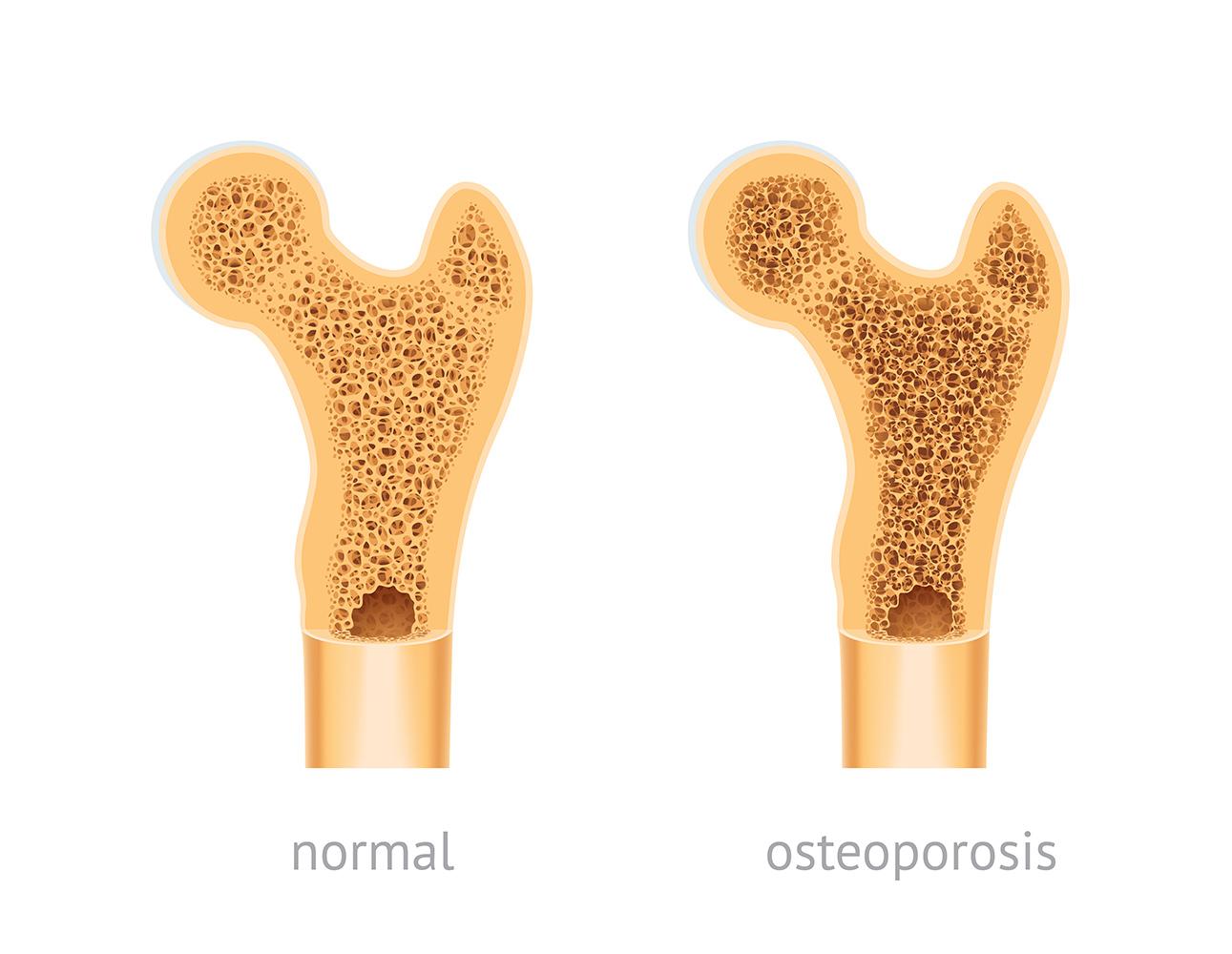 osteoporosis en la menopausia