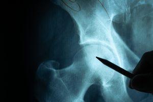 cadera menopausia terapia hormonal